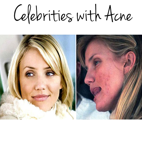 celebrities with acne