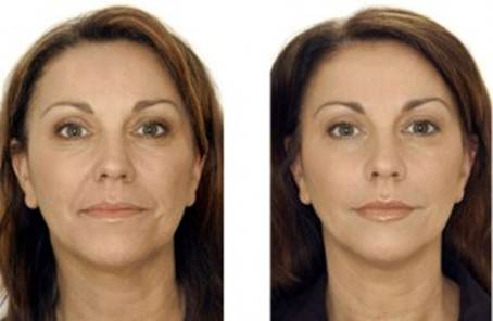 Vampire face lift before and after