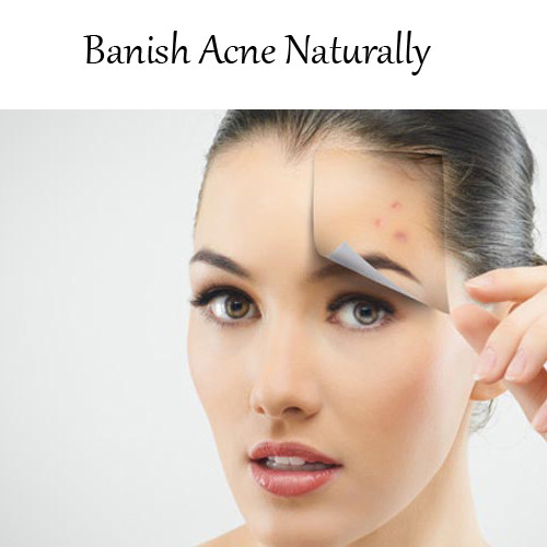 Banish Acne Naturally