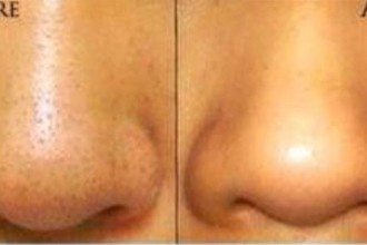 DIY Blackhead Removal Hacks & Tips, natural remedy , get rid of blackheads and whiteheads, skincare, oily skin, beauty hacks