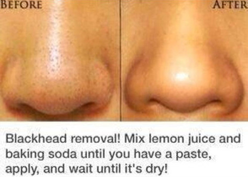 DIY Blackhead Removal Hacks and Tips